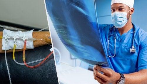 Tratamiento del cáncer de pulmón