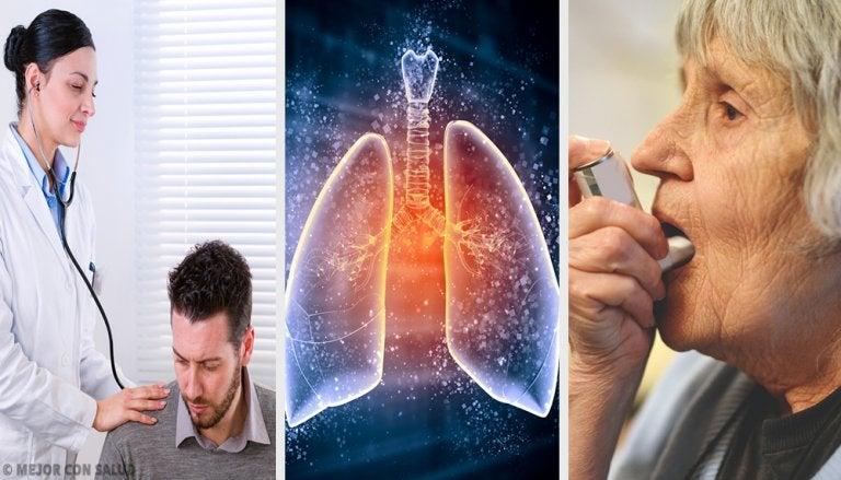 Tratamiento del enfisema pulmonar