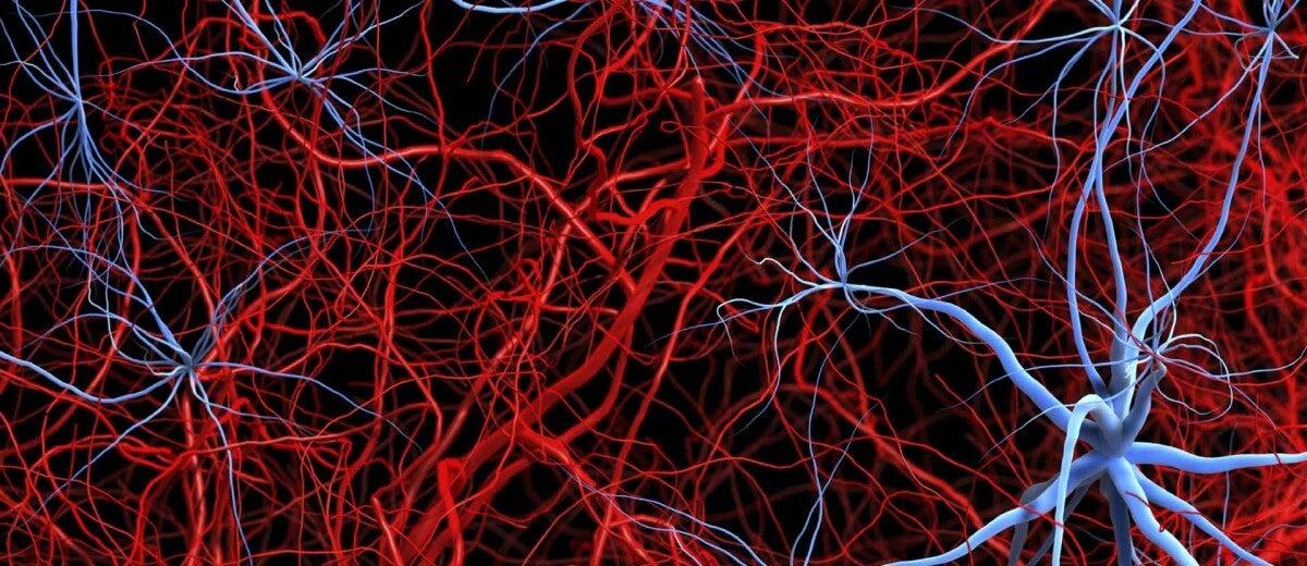 Síndrome de Churg-Strauss o granulomatosis alérgica