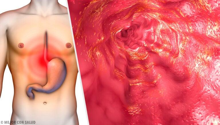 Anatomía del esófago