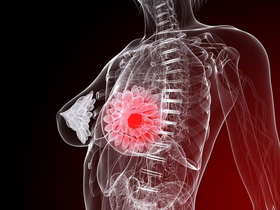 Cáncer de mama, ilustración anatómica.