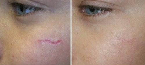 cicatrices-en-los-ninos