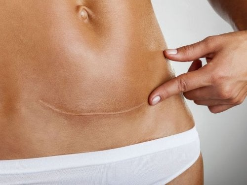 Problemas de cicatrización cuando tu cuerpo no está bien