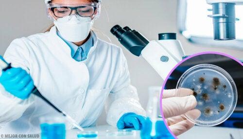Criptococosis: todo lo que debes saber