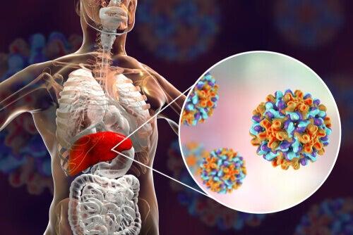 Causas de la hepatitis B