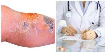 Tratamiento de la erisipela