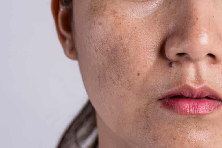 6 mitos sobre el acné que no te ayudarán a superarlo