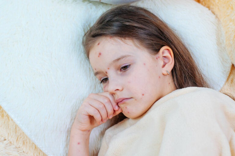 El origen de la vacuna: la viruela