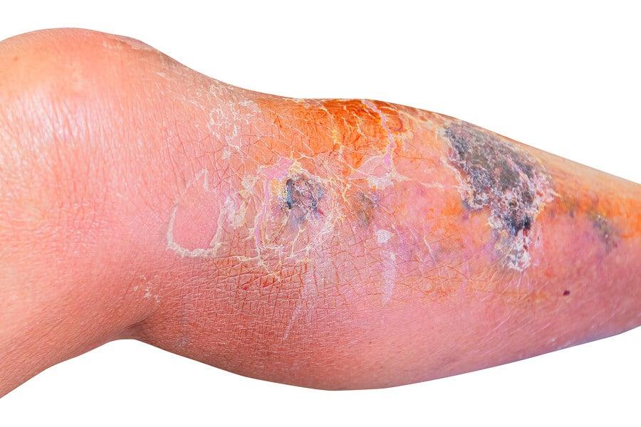 Pierna infectada con erisipela.