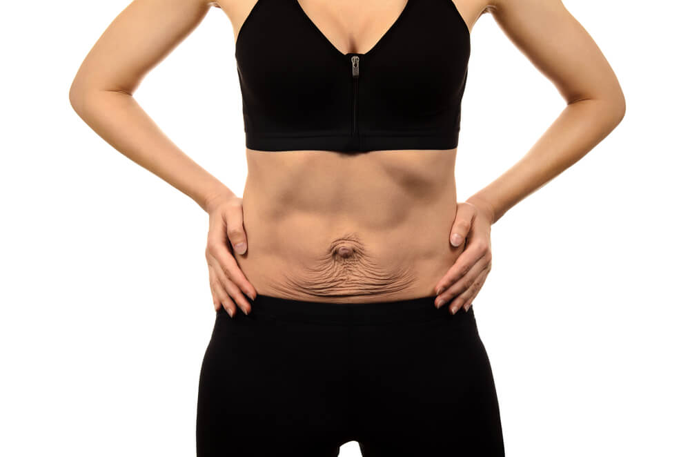 Reducir Piel Sobrante Adelgazar Sin How To Reduce Stomach Fat By Exercises