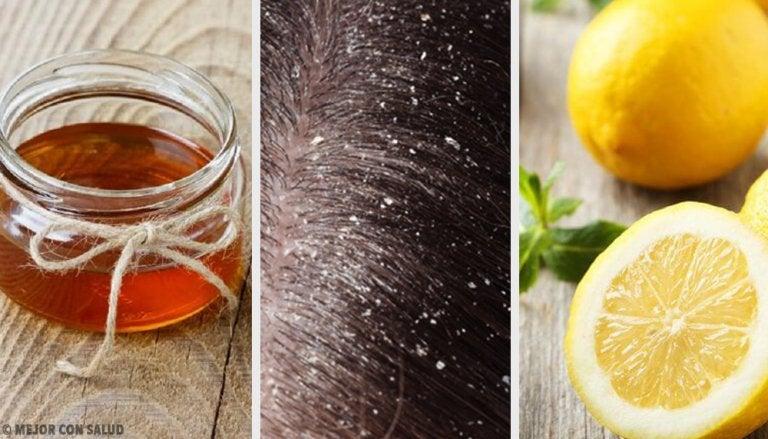 10 remedios naturales eficaces contra la caspa