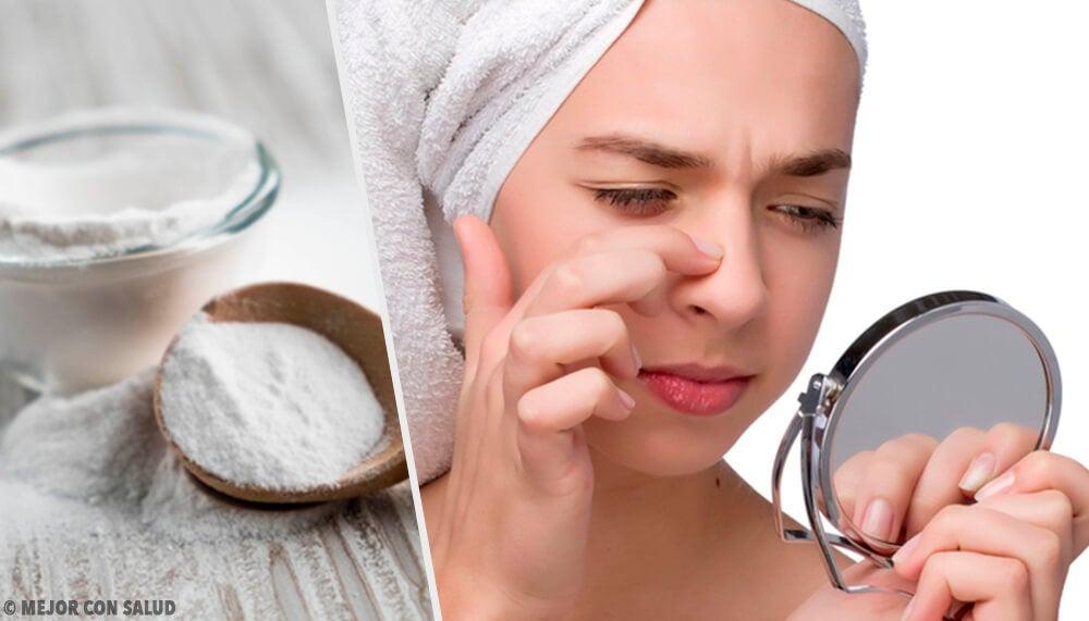 Mulher limpando a pele de cravos e espinhas com bicarbonato de sódio