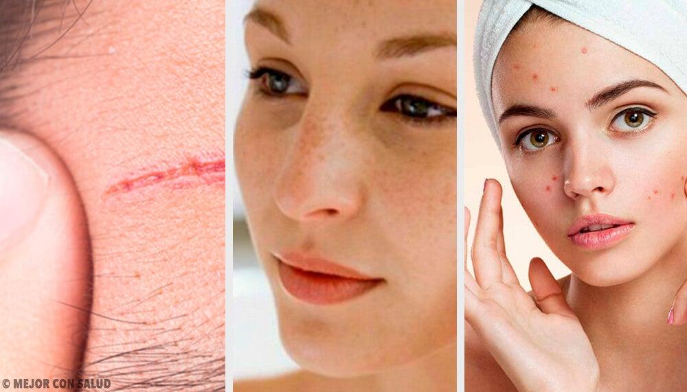 Los problemas más frecuentes del rostro y cómo tratarlos
