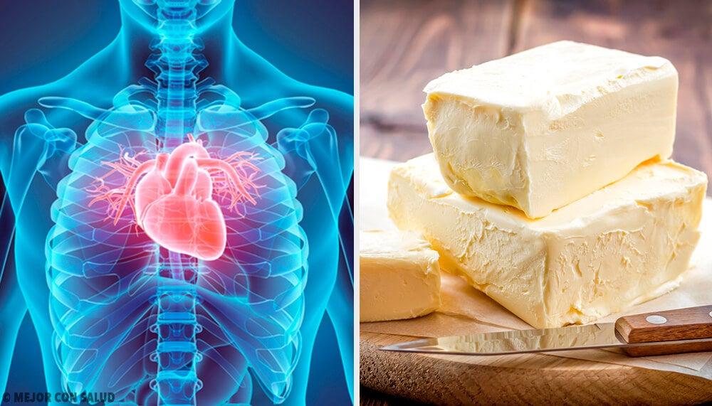 5 comidas que afectan gravemente tu corazón