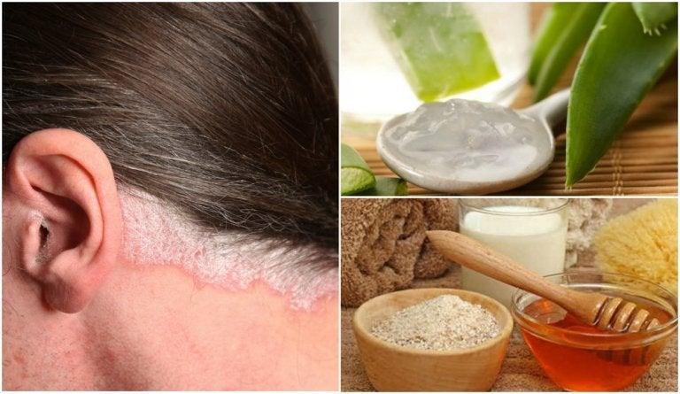 5 remedios caseros para la psoriasis en el cuero cabelludo