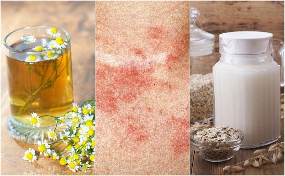 5 Remedios Caseros Para Tratar La Dermatitis De Contacto Mejor Con Salud