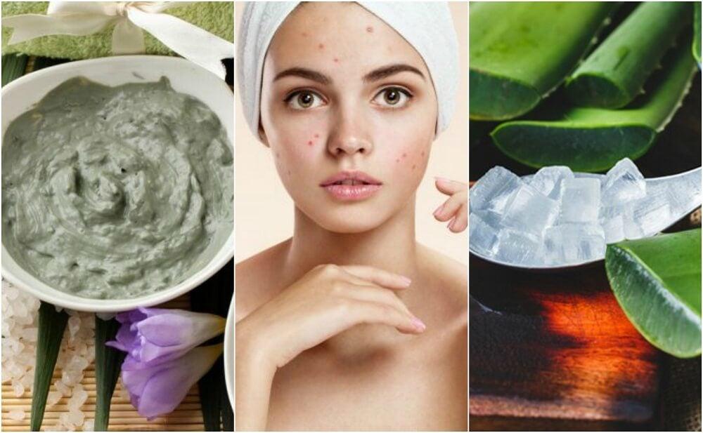 5 tratamientos de origen natural para los granos de la cara