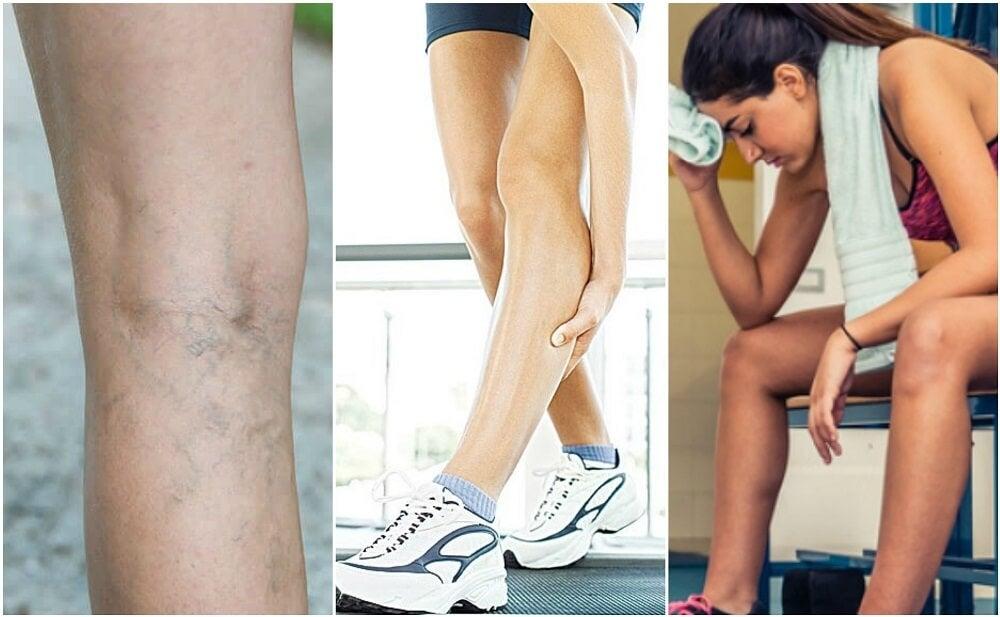 ¿Qué son los calambres musculares? ¿Cómo evitarlos?