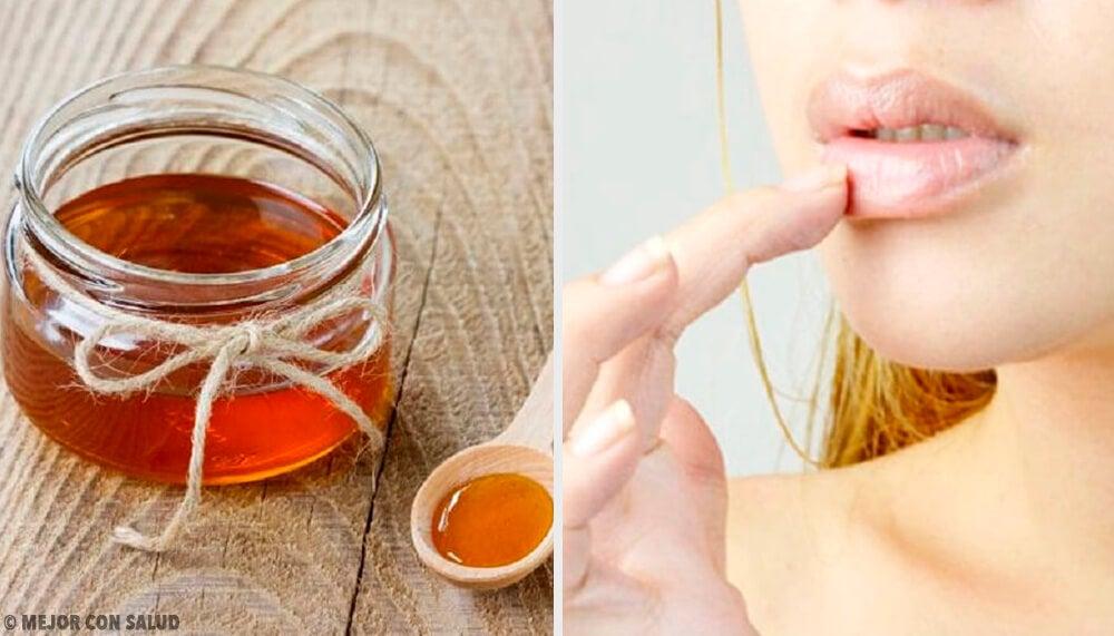 6 remedios naturales para las grietas labiales