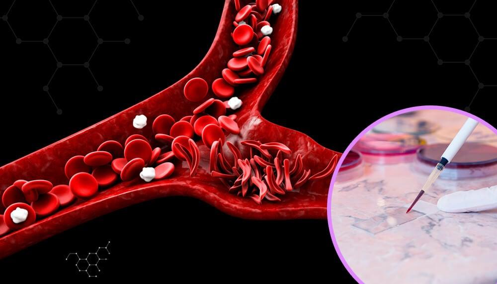 Anemia falciforme: todo lo que debes saber