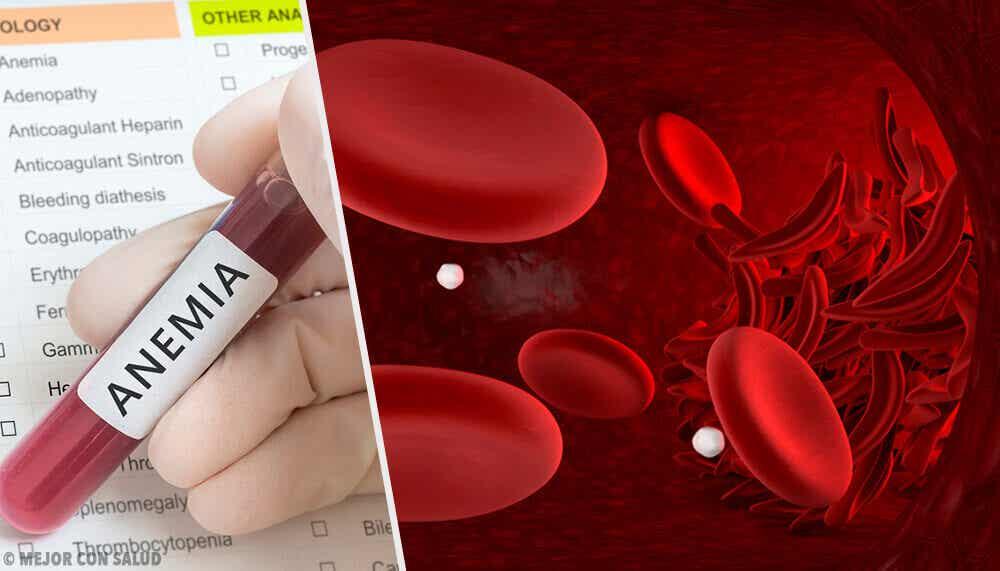 Diagnóstico de anemia.