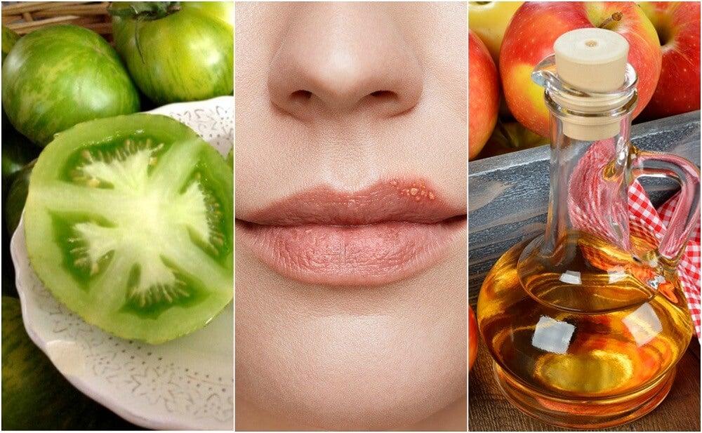 Cómo combatir el herpes labial con 5 tratamientos naturales