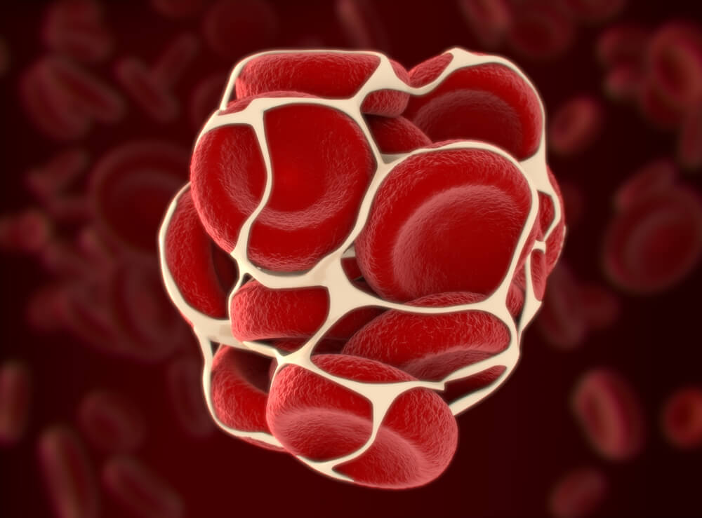 Coágulo de sangre que obstruye una hemorroide trombosada.