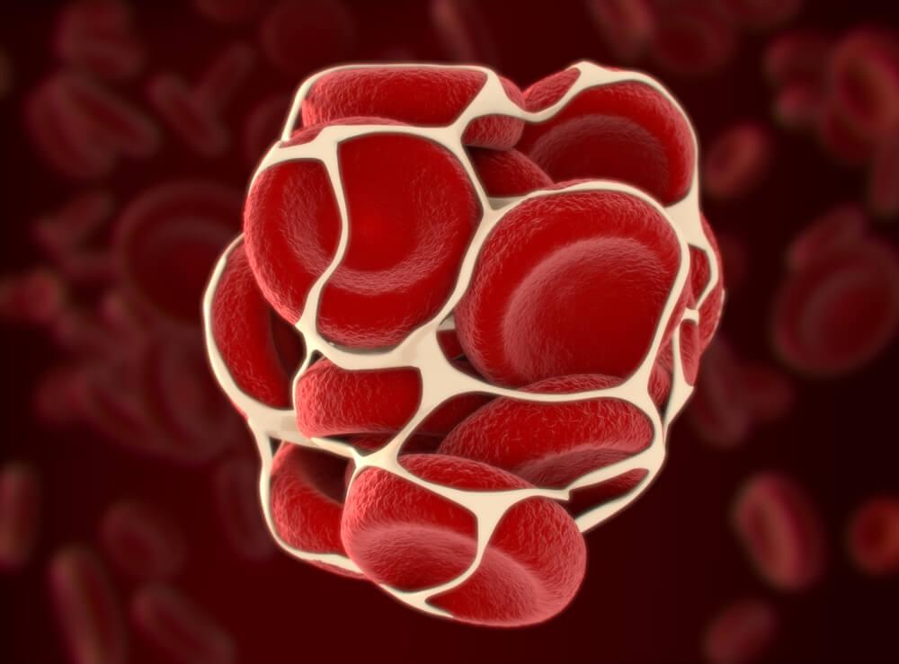 Was sind thrombosierte Hämorrhoiden?