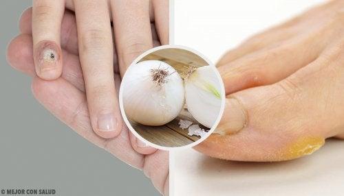 Cómo eliminar los callos de manos y pies de manera natural