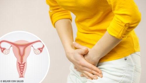 La torsión ovárica es una de las enfermedades de los ovarios