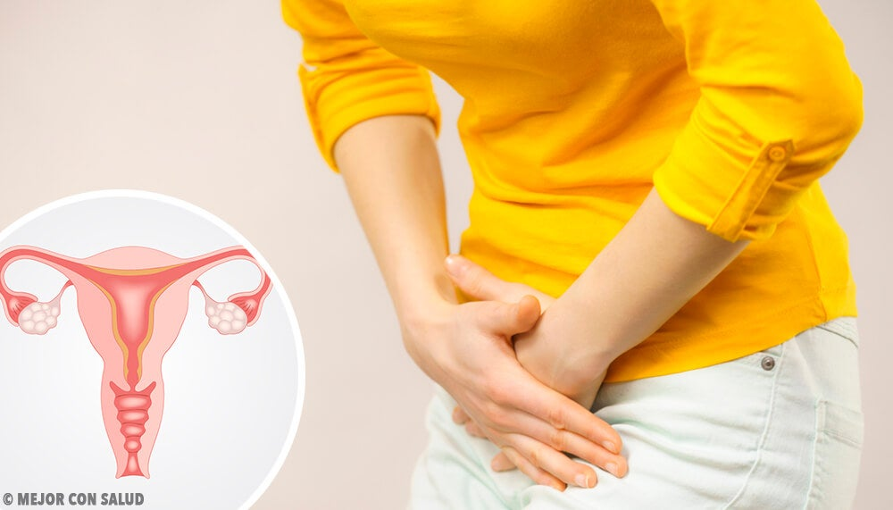 Mujer tocándose el abdomen por el dolor que le provoca el síndrome del ovario poliquístico