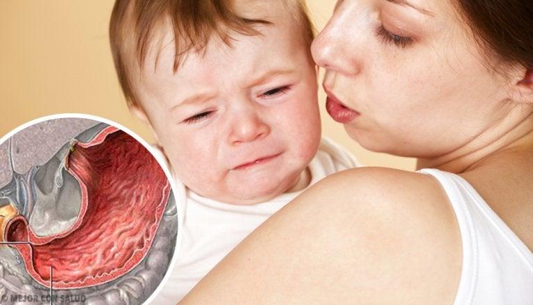 Estenosis pilórica: síntomas y tratamiento