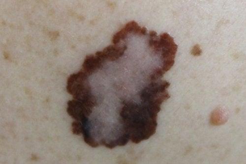 Factores-de-riesgo-y-tipos-de-melanomas-malignos