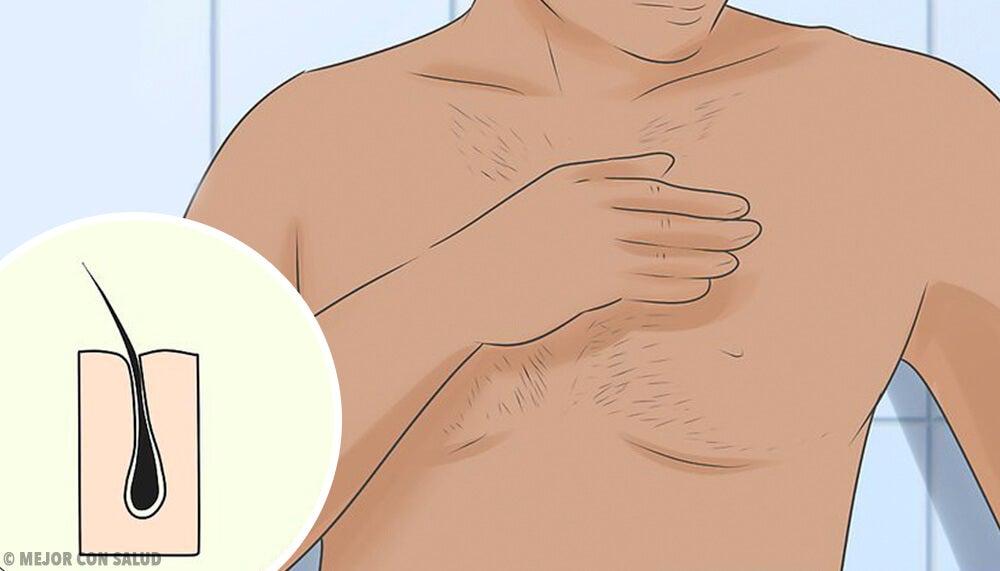 Anatomía y función del folículo piloso — Mejor con Salud 8e754b421ba9