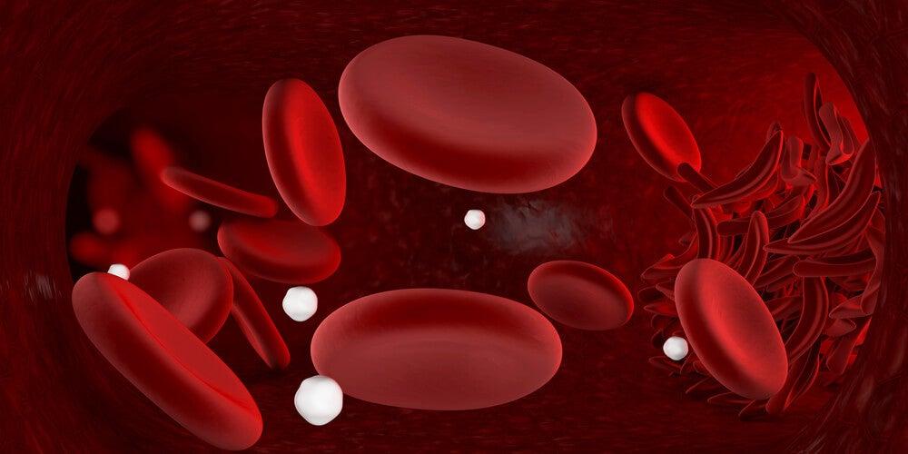 hematomas de células falciformes