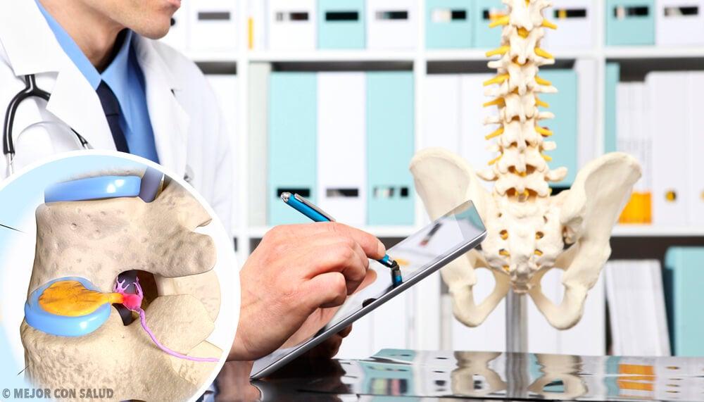 Hernia discal: qué es y en qué consiste – Mejor con Salud