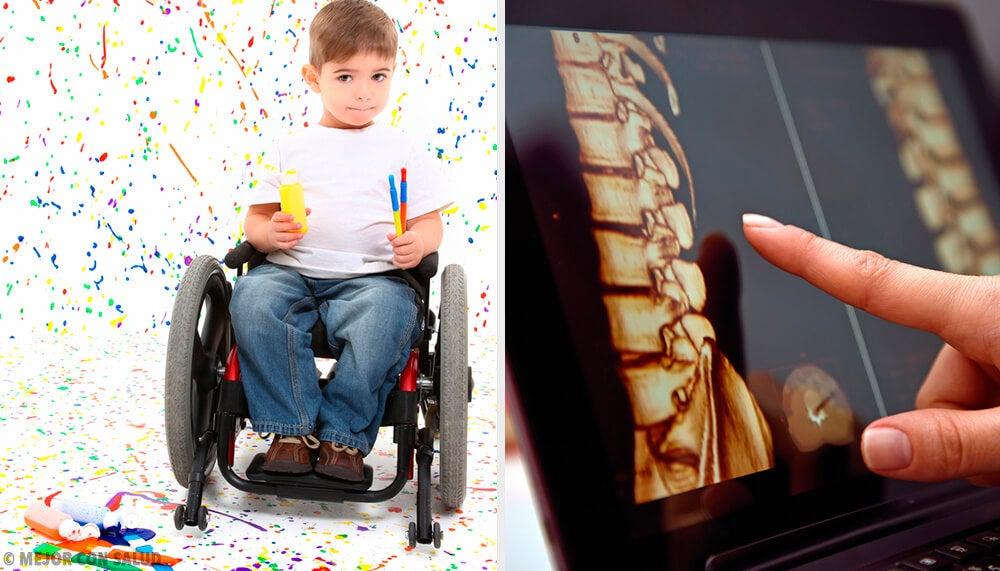 La espina bífida: todo lo que debes saber