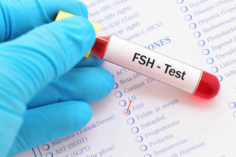 La prueba de FHS: análisis de sangre para determinar la cantidad de hormona estimuladora del folículo.