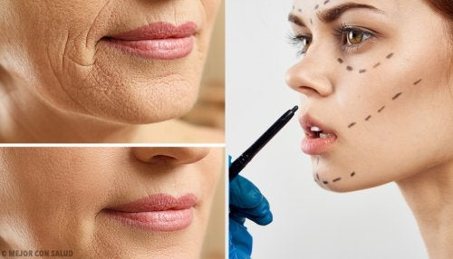 Lifting facial: todo lo que debes saber