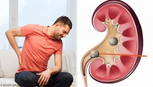 ¿Qué es la litiasis renal?