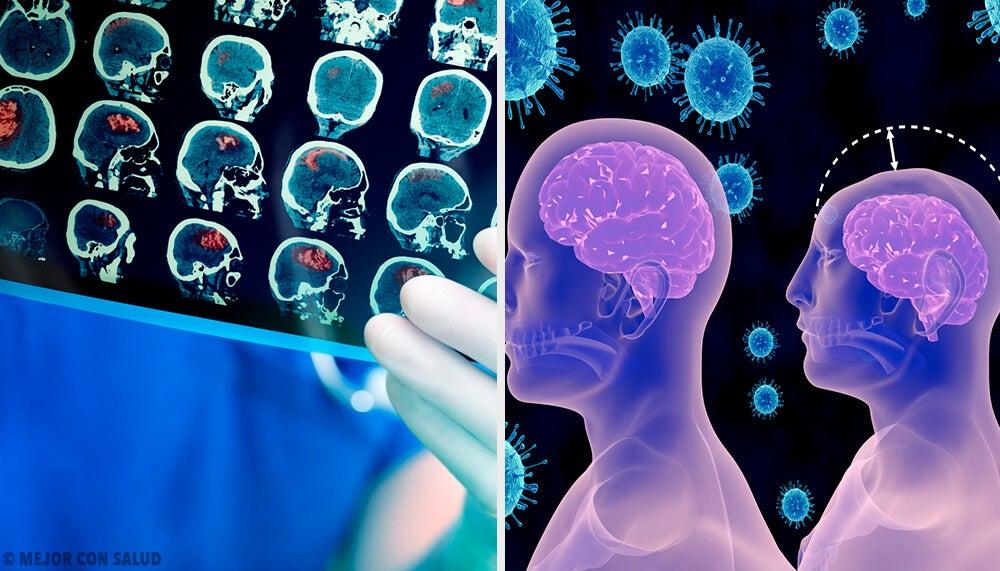 Microcefalia: qué es y en qué consiste