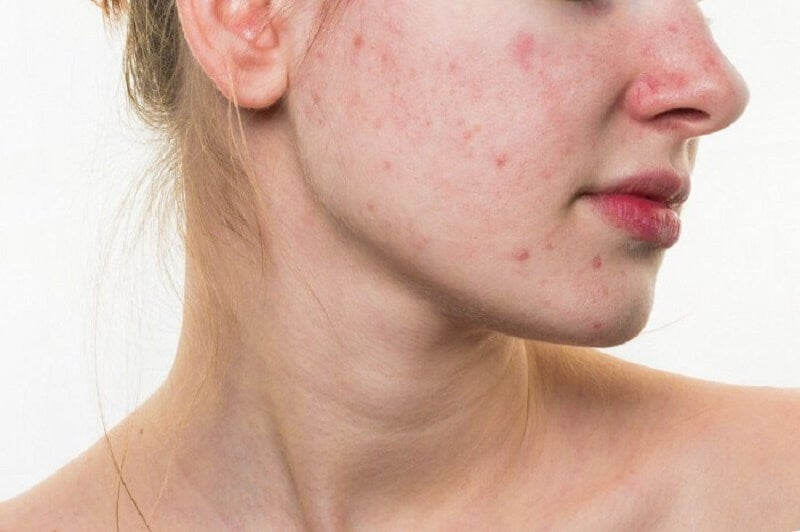 Mujer-con-acné