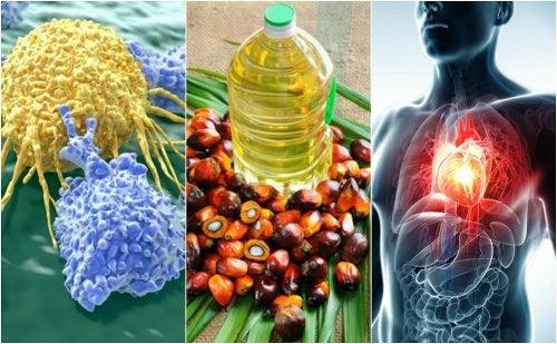 Razones por las que el aceite de palma es malo para la salud
