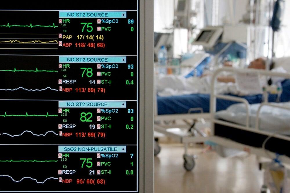 Recuperación del bypass coronario