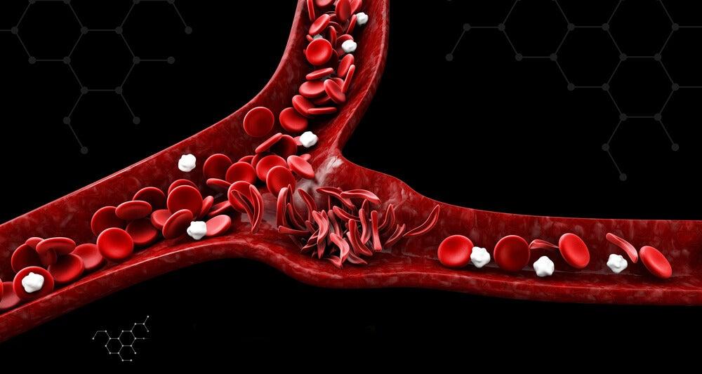 Síntomas de la anemia falciforme