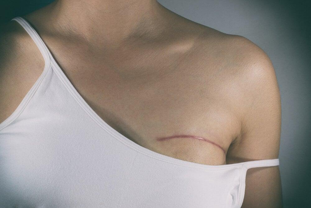 Tipos de mastectomía