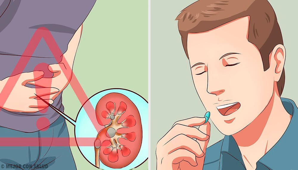 Tratamiento de la litiasis renal