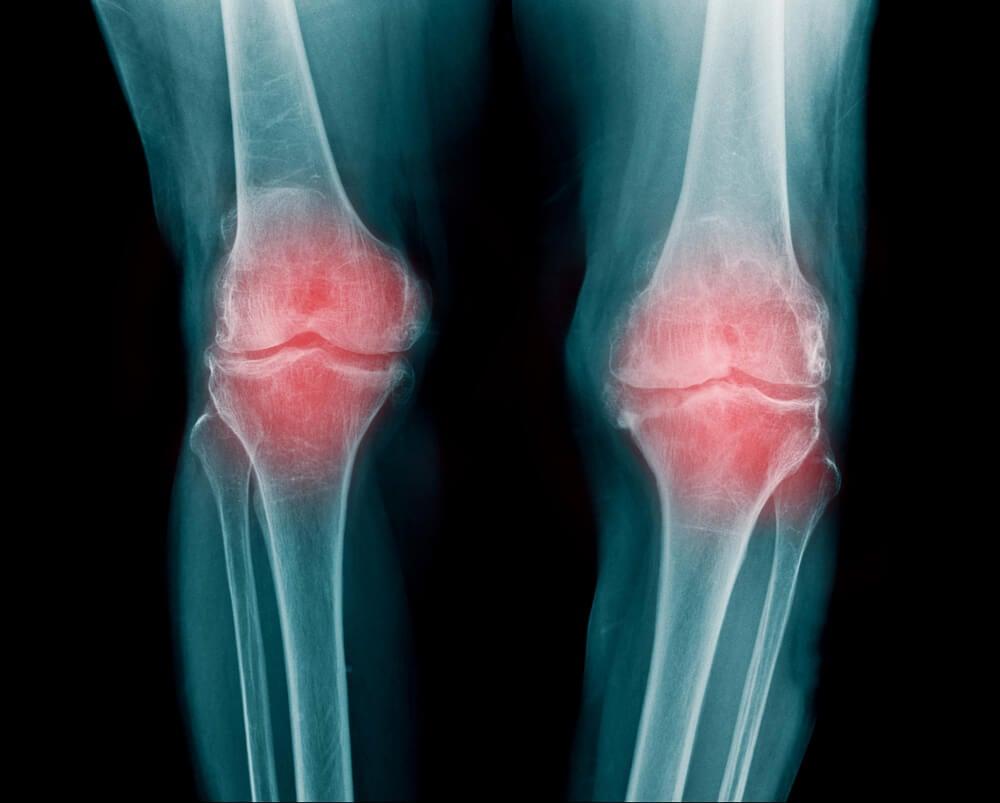Articulación de la rodilla – Mejor con Salud