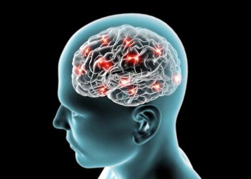 Vía dopaminérgica tuberoinfundibular