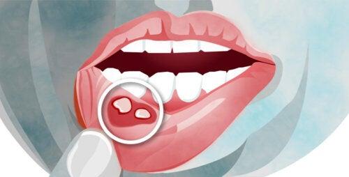 Aftas bucales: síntomas y tratamiento